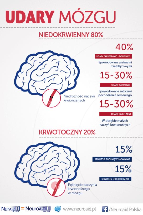 rodzaje udaru mózgu